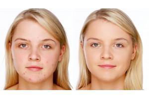 Как исправить проблемы с кожей