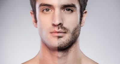 Почему не растет борода у мужчин